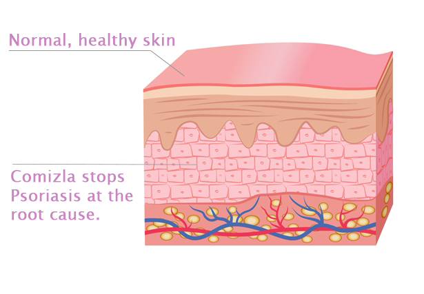Comizla Psoriasis Treatment Step 3